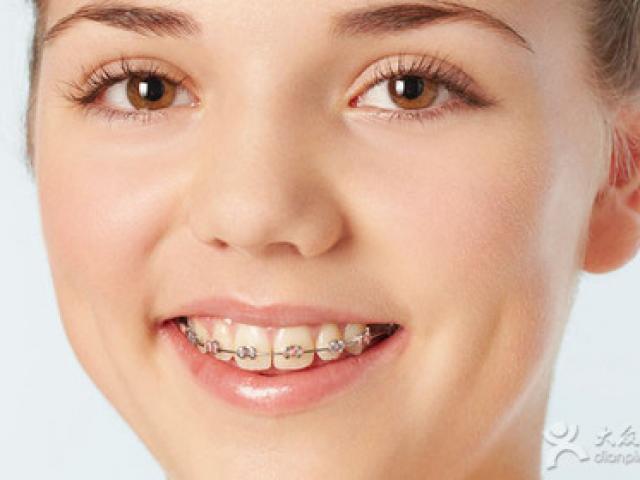 【李医生口腔诊所】畸牙矫正 牙齿矫正  整牙矫正,精彩生活>>丽人时尚>>口腔护理