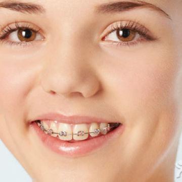 畸牙矫正 牙齿矫正  整牙矫正